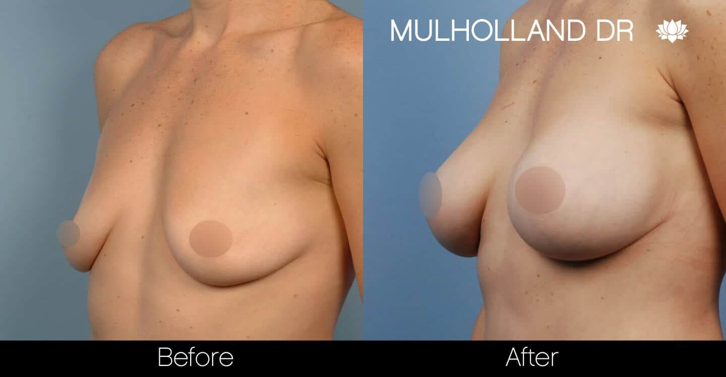 Breast Augmentation - Before and After Gallery - Patient Photo 39