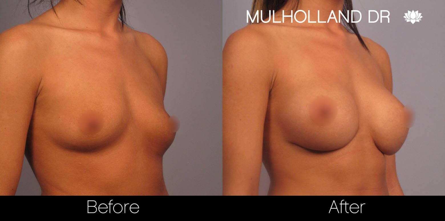 Breast Augmentation - Before and After Gallery - Patient Photo 4