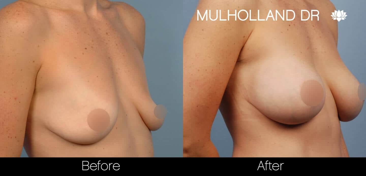 Breast Augmentation - Before and After Gallery - Patient Photo 40