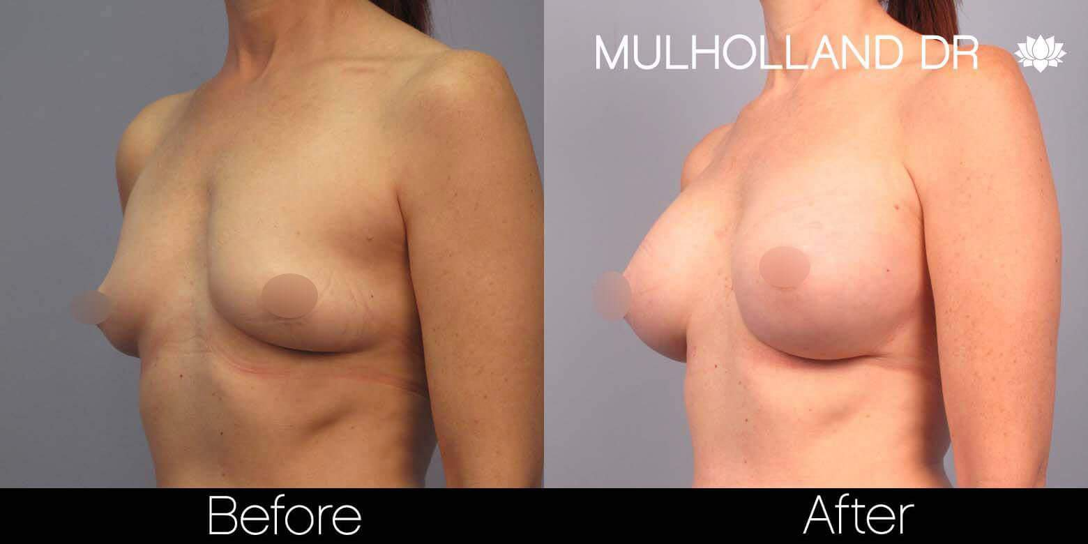Breast Augmentation - Before and After Gallery - Patient Photo 41