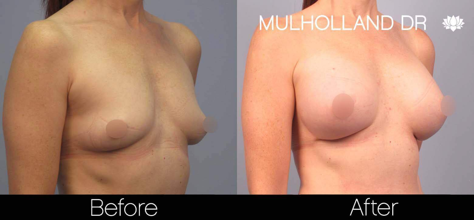 Breast Augmentation - Before and After Gallery - Patient Photo 42