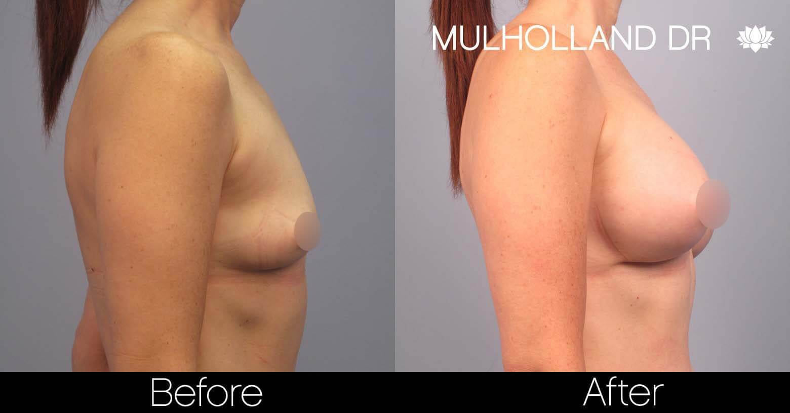 Breast Augmentation - Before and After Gallery - Patient Photo 43