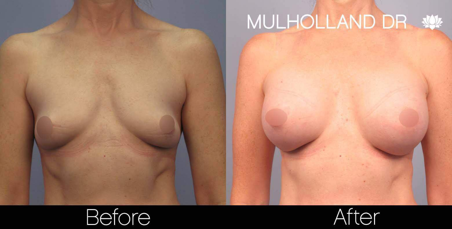 Breast Augmentation - Before and After Gallery - Patient Photo 44