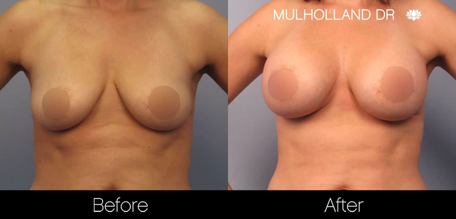 Breast Augmentation - Before and After Gallery - Patient Photo 45