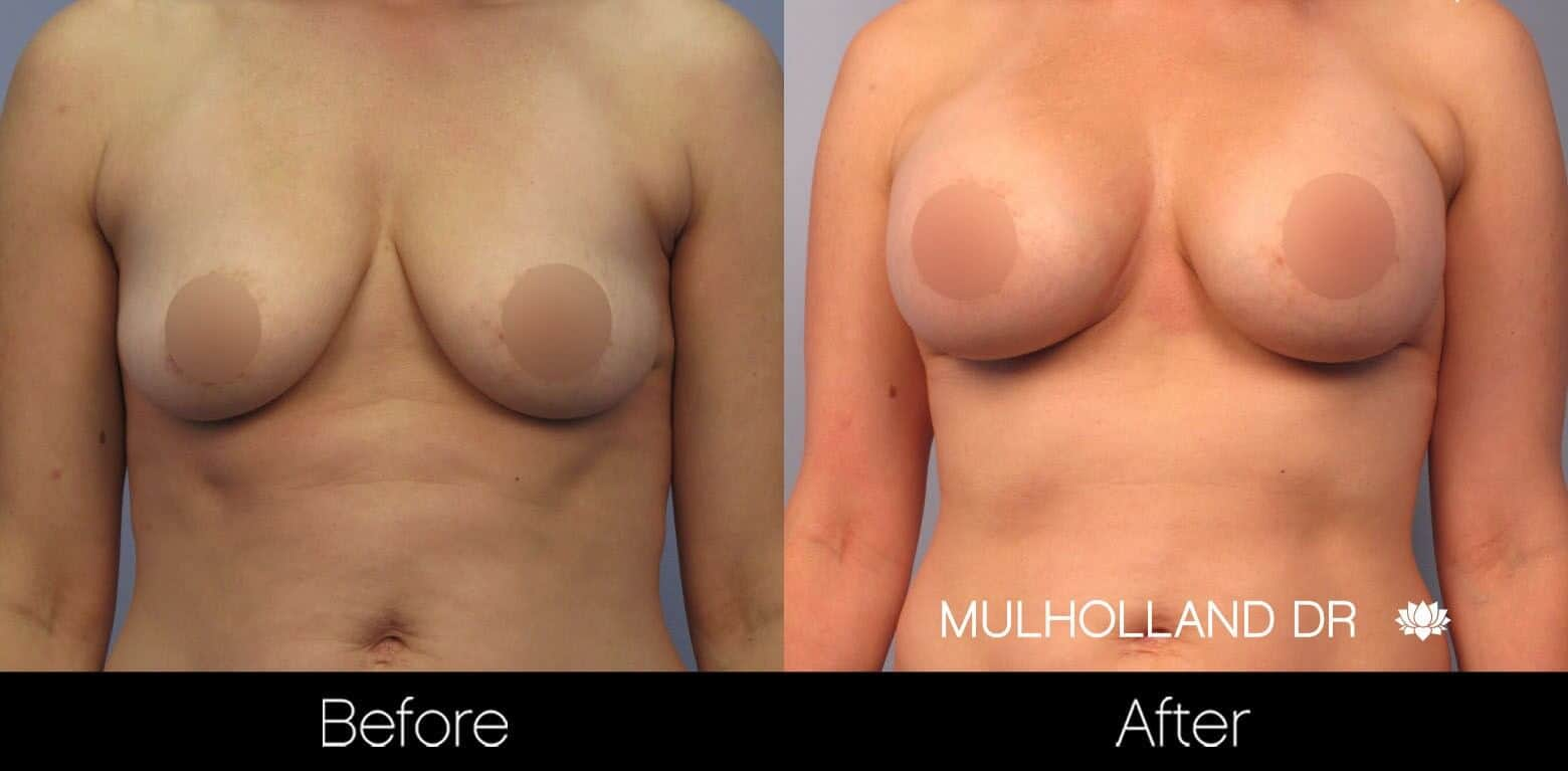Breast Augmentation - Before and After Gallery - Patient Photo 46