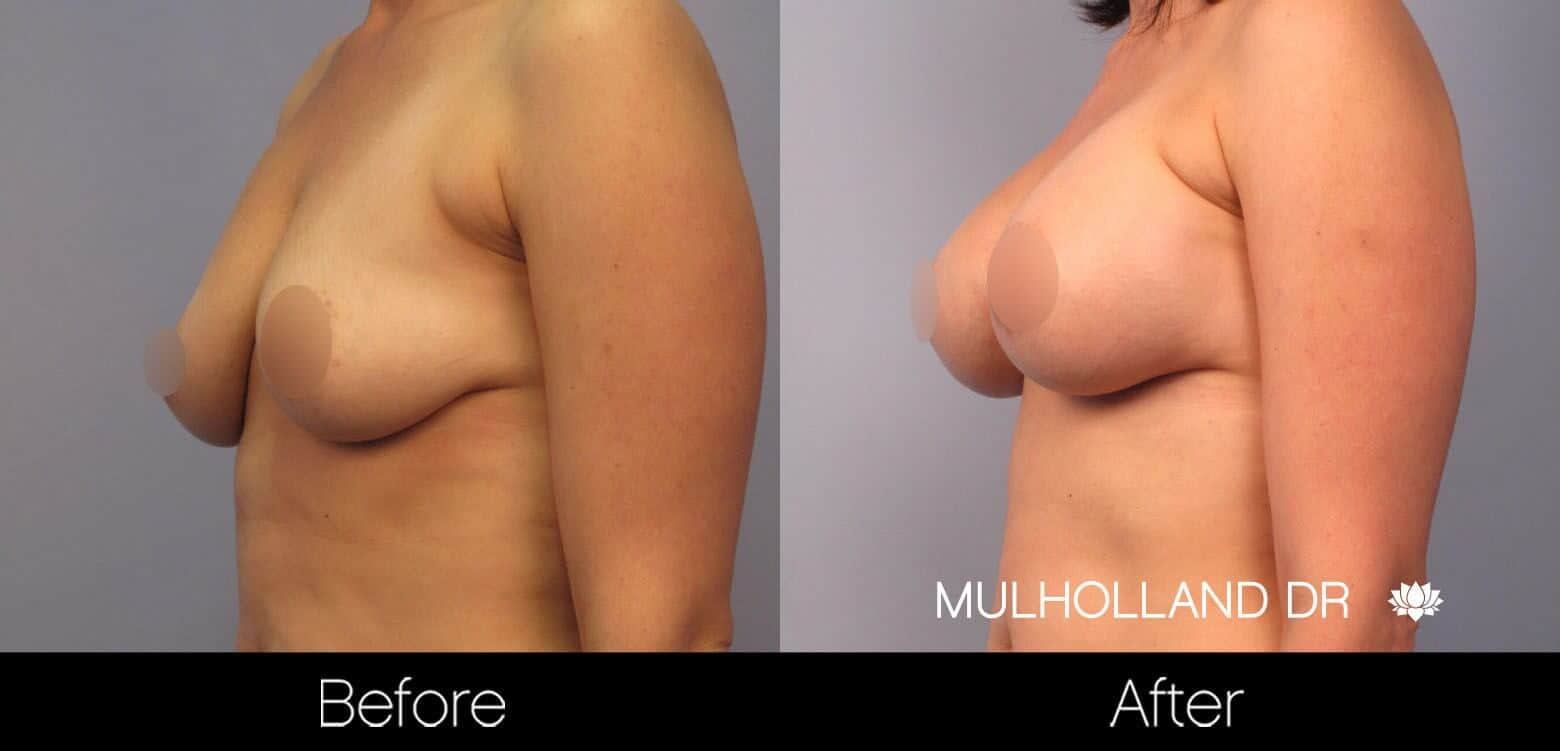 Breast Augmentation - Before and After Gallery - Patient Photo 47