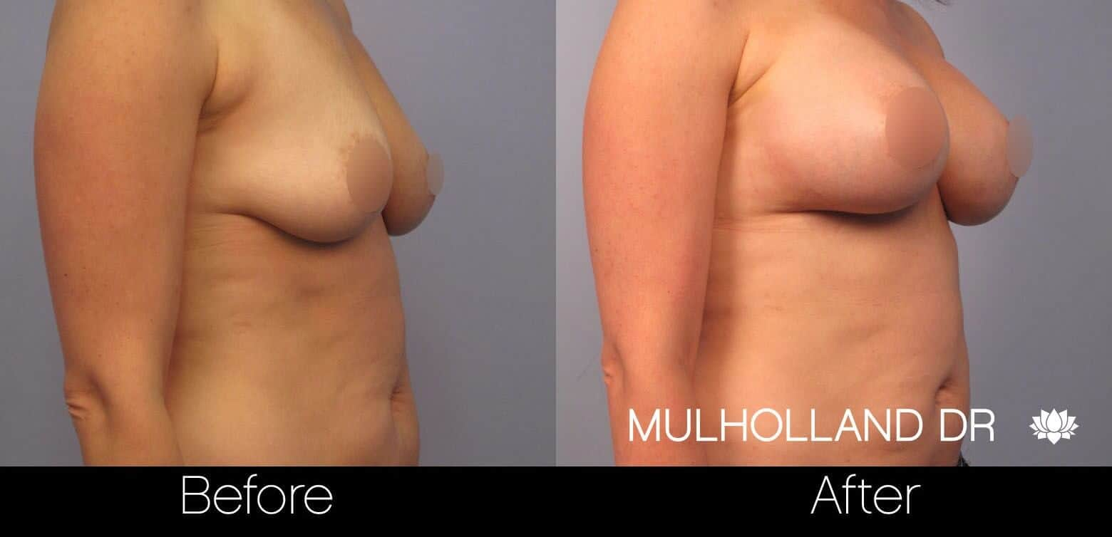 Breast Augmentation - Before and After Gallery - Patient Photo 48