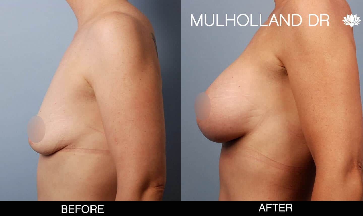 Breast Augmentation - Before and After Gallery - Patient Photo 49