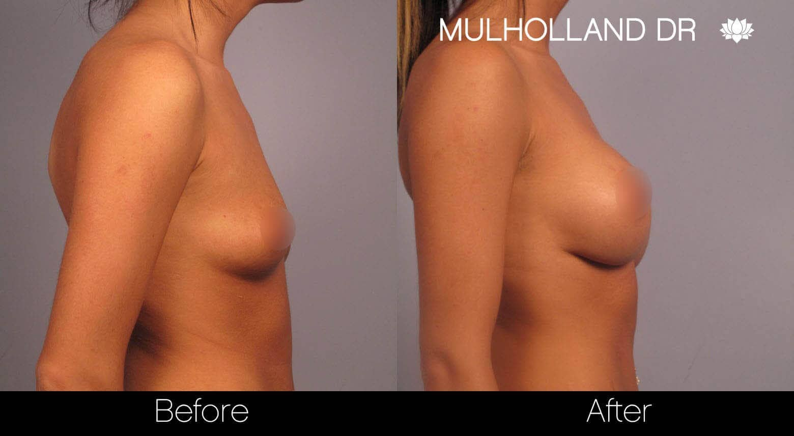 Breast Augmentation - Before and After Gallery - Patient Photo 5