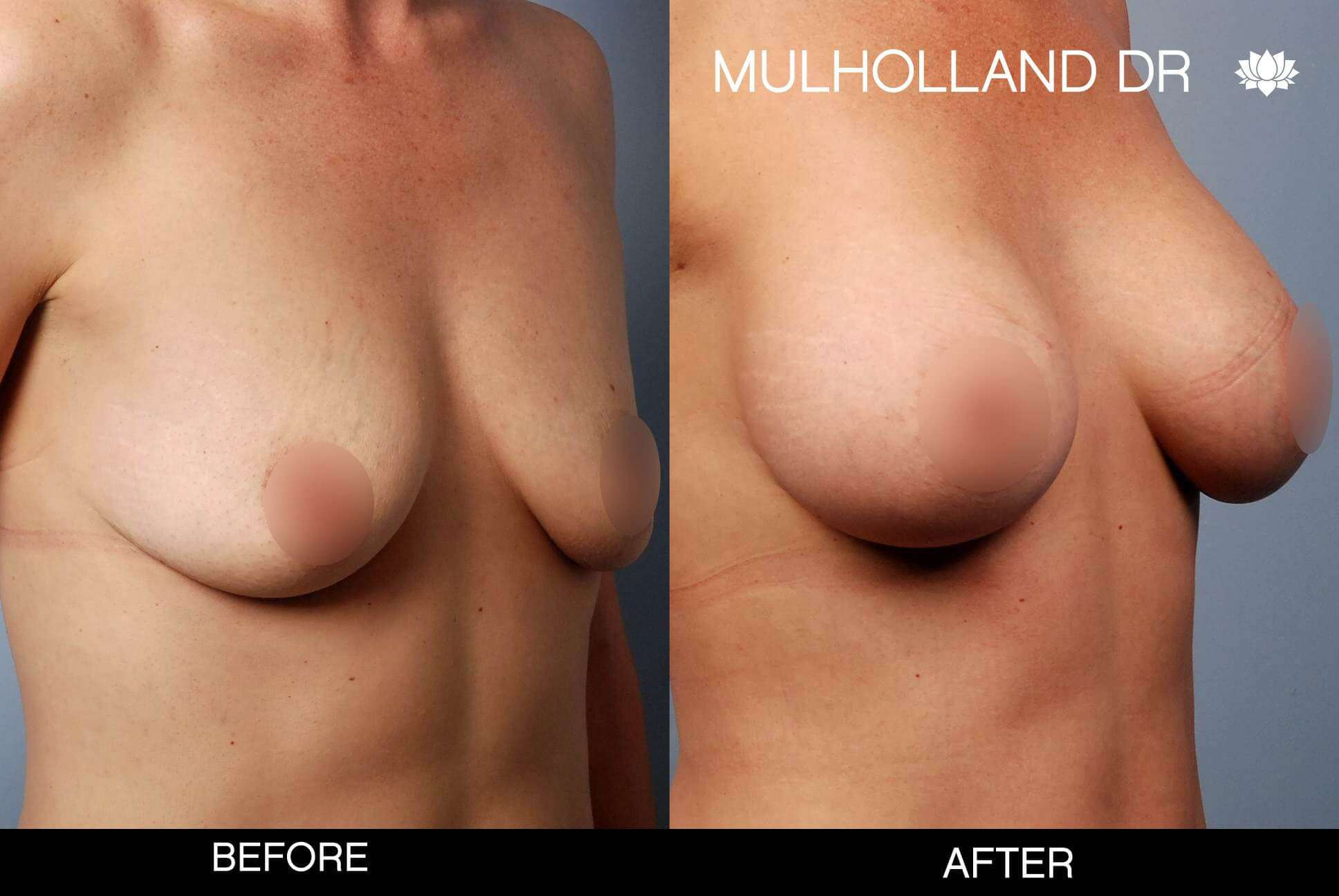 Breast Augmentation - Before and After Gallery - Patient Photo 50