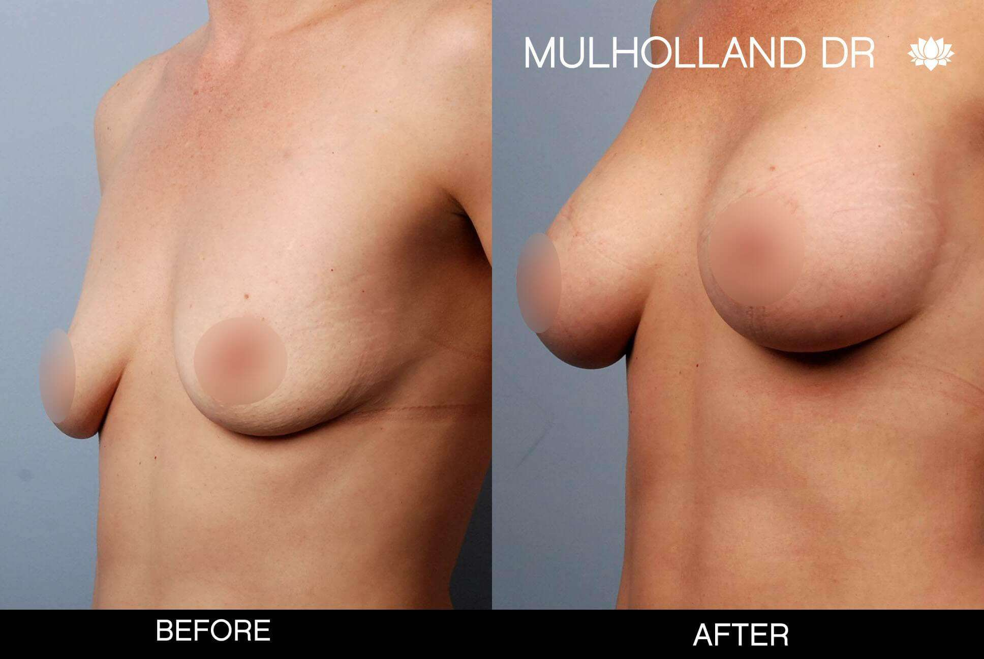 Breast Augmentation - Before and After Gallery - Patient Photo 51