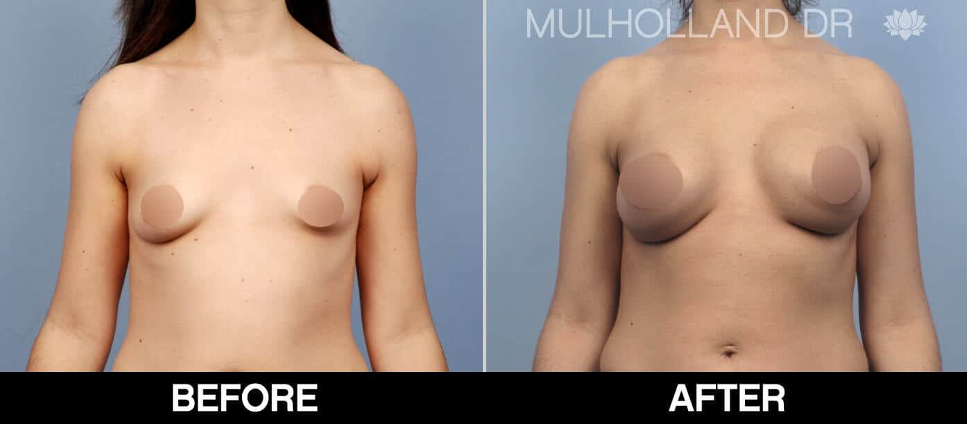 Breast Augmentation - Before and After Gallery - Patient Photo 53