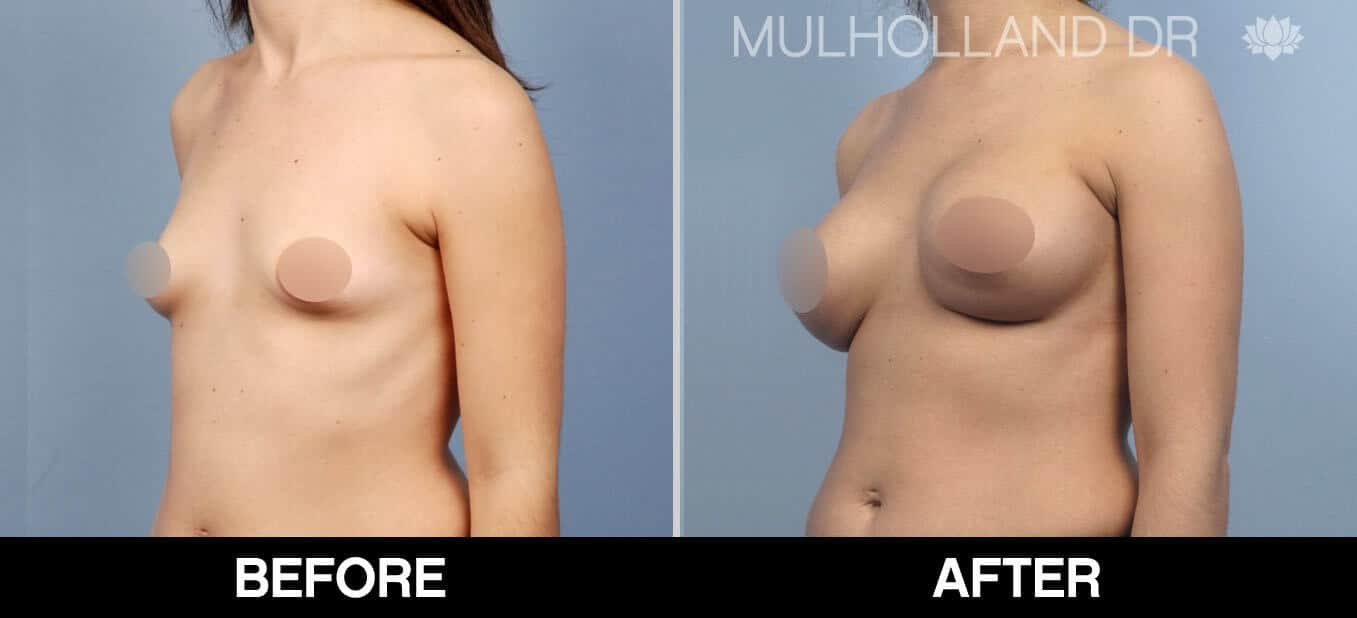Breast Augmentation - Before and After Gallery - Patient Photo 54