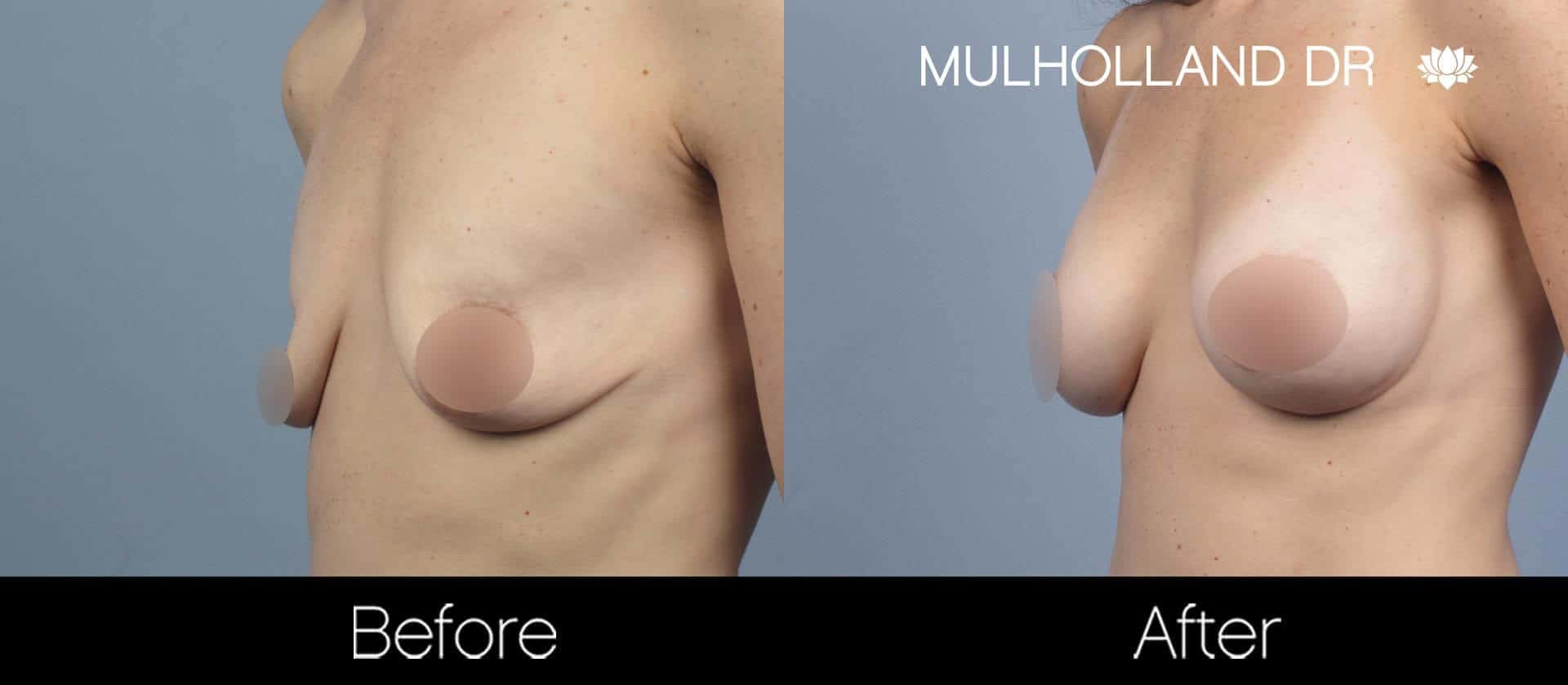 Breast Augmentation - Before and After Gallery - Patient Photo 55