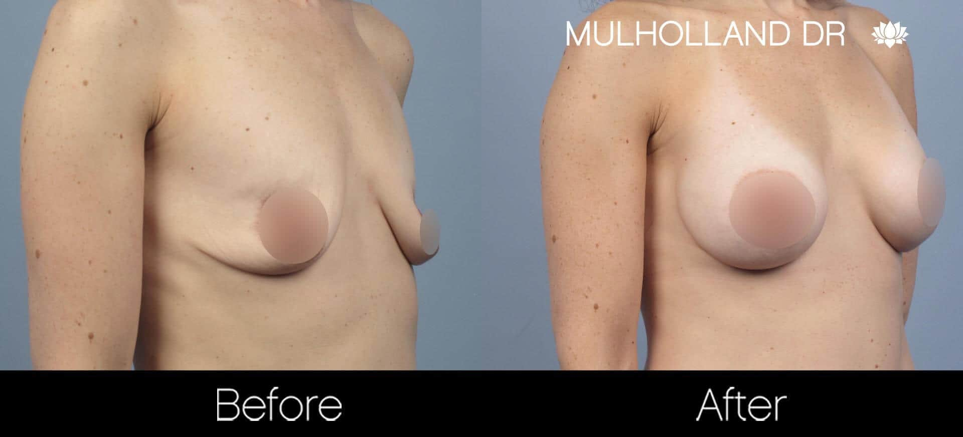 Breast Augmentation - Before and After Gallery - Patient Photo 56