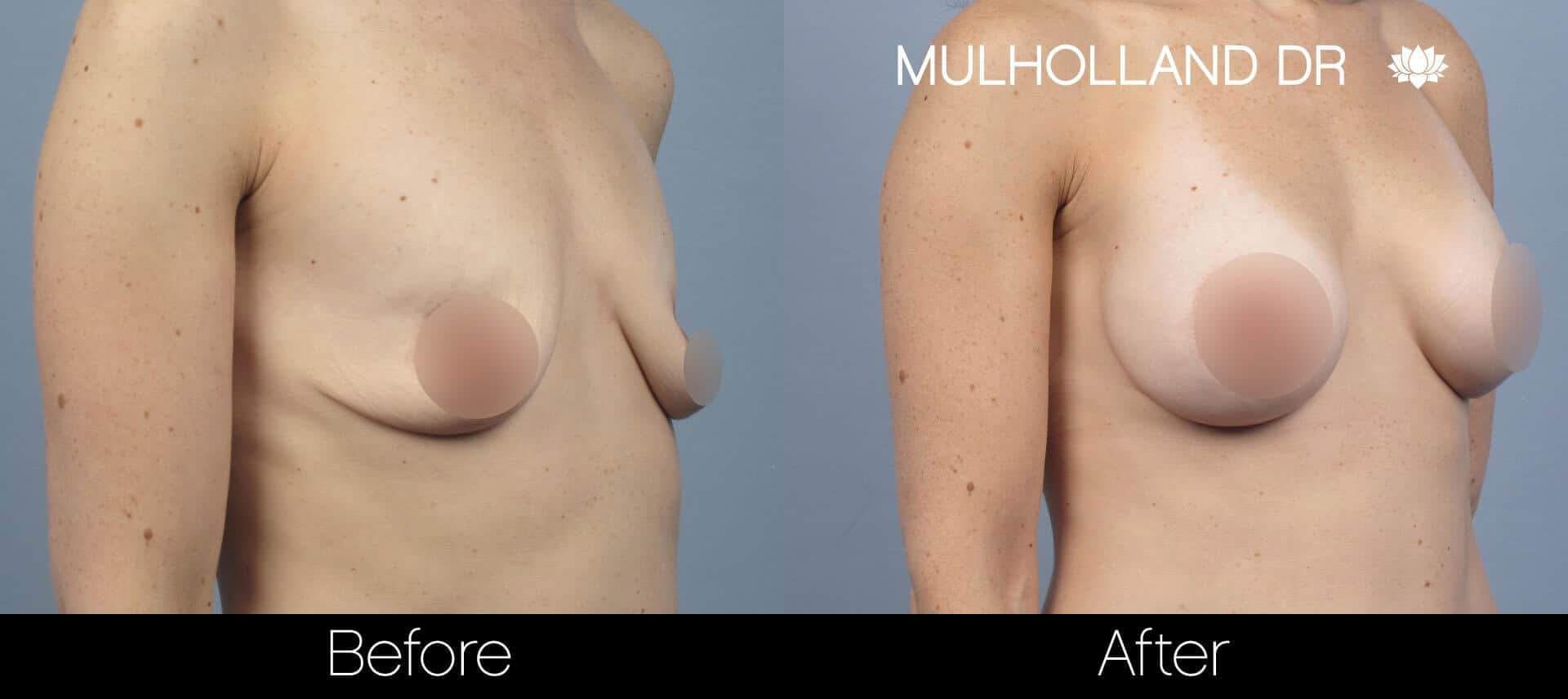 Breast Augmentation - Before and After Gallery - Patient Photo 58