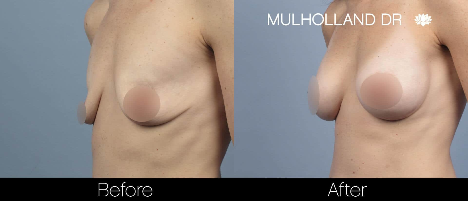 Breast Augmentation - Before and After Gallery - Patient Photo 59