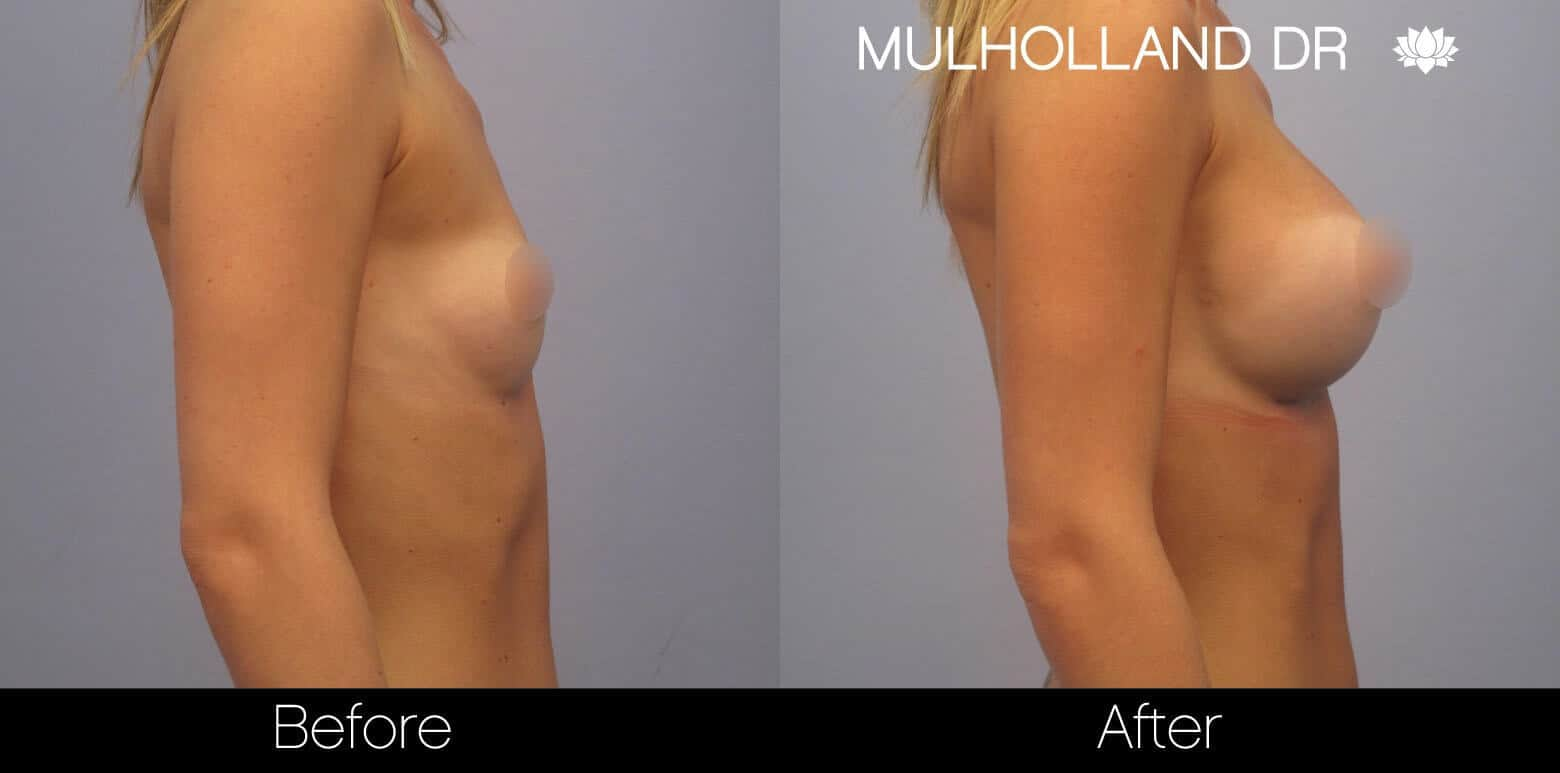 Breast Augmentation - Before and After Gallery - Patient Photo 6