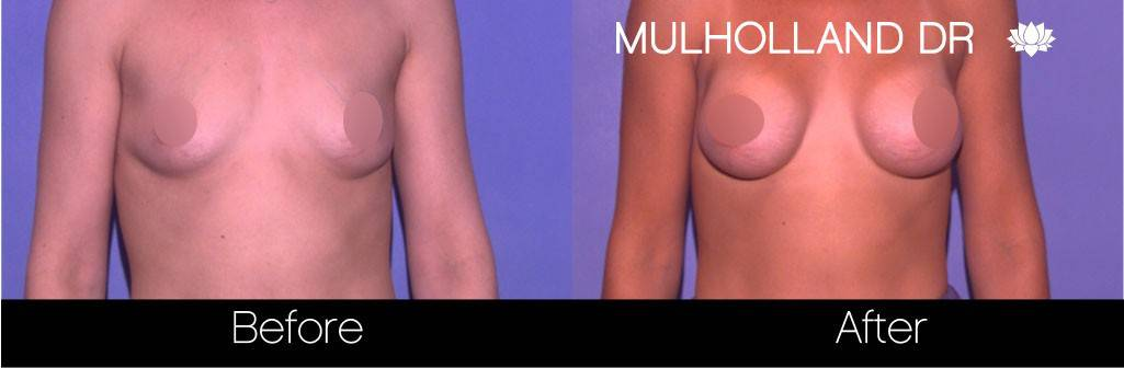 Breast Augmentation - Before and After Gallery - Patient Photo 61