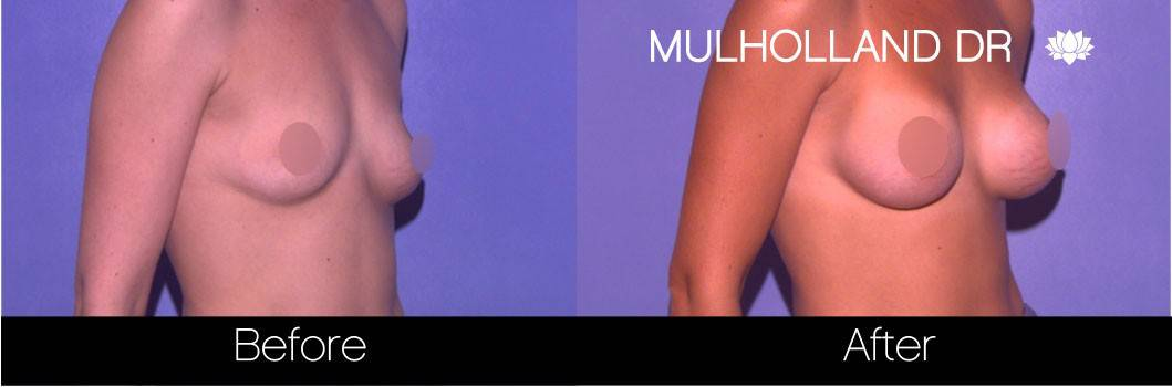 Breast Augmentation - Before and After Gallery - Patient Photo 63
