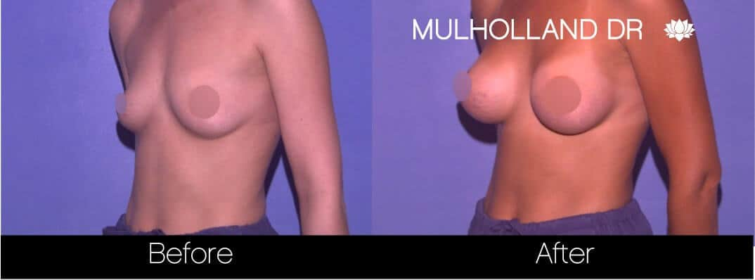 Breast Augmentation - Before and After Gallery - Patient Photo 65