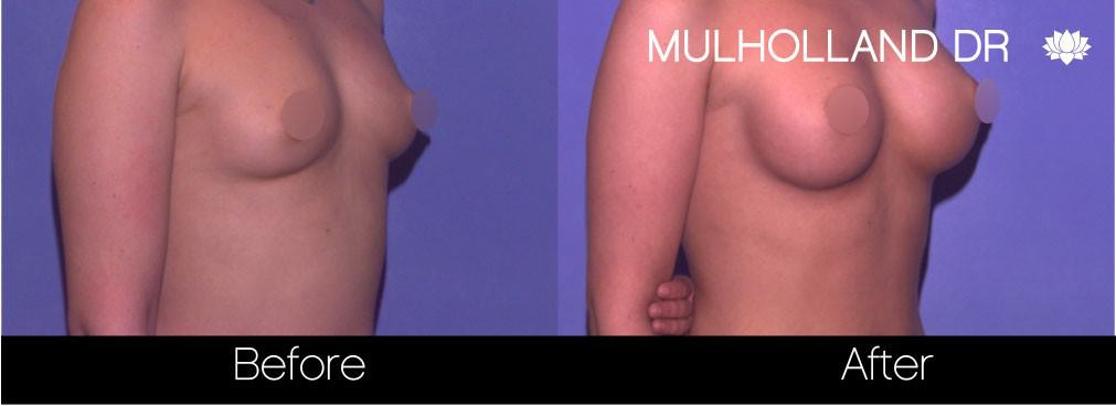 Breast Augmentation - Before and After Gallery - Patient Photo 68