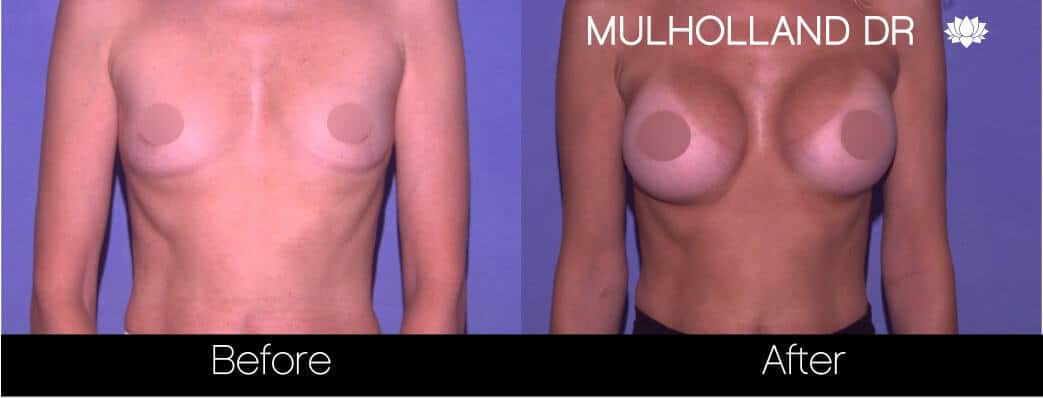 Breast Augmentation - Before and After Gallery - Patient Photo 69
