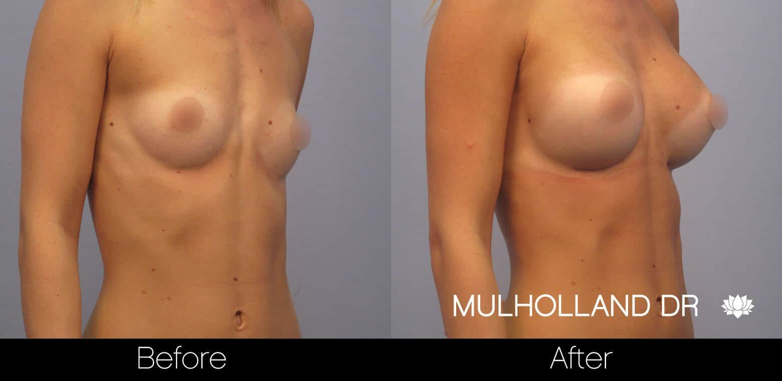 Breast Augmentation - Before and After Gallery - Patient Photo 7