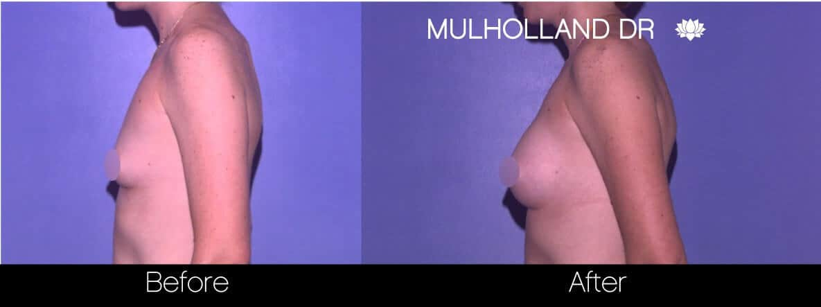 Breast Augmentation - Before and After Gallery - Patient Photo 76