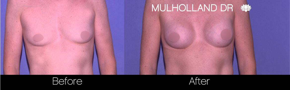 Breast Augmentation - Before and After Gallery - Patient Photo 78