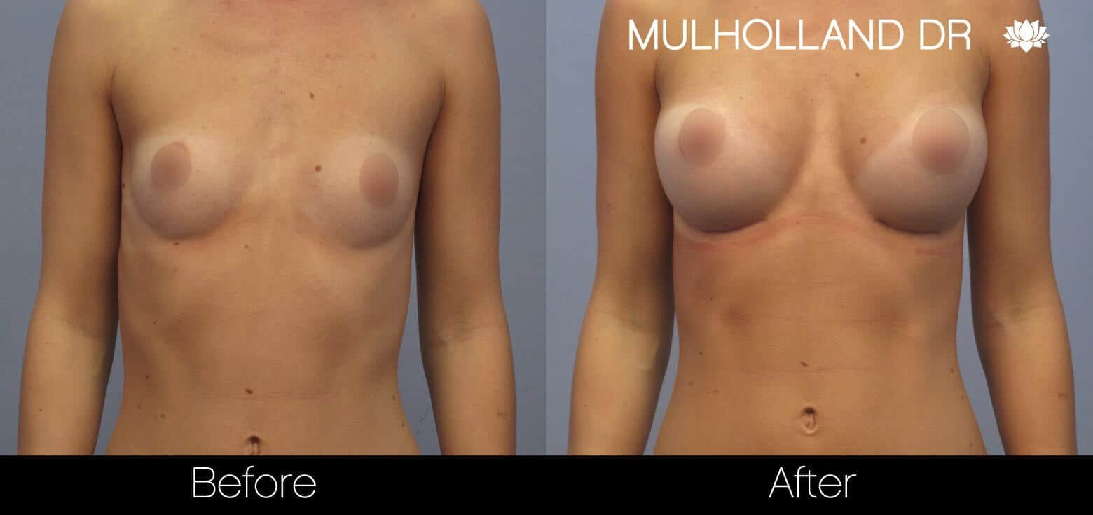 Breast Augmentation - Before and After Gallery - Patient Photo 8