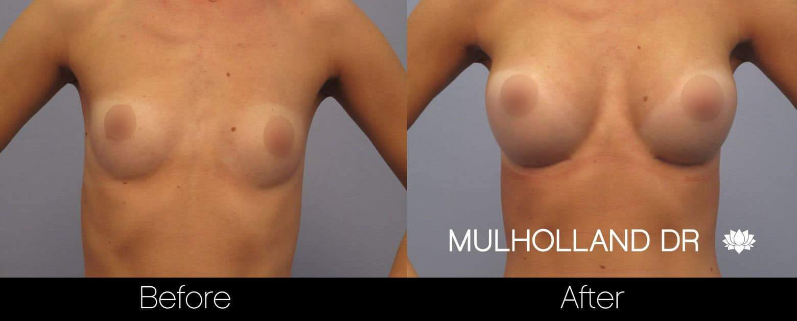 Breast Augmentation - Before and After Gallery - Patient Photo 9