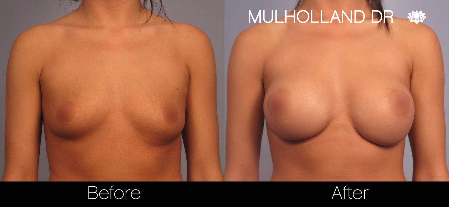 Breast Augmentation - Before and After Gallery - Patient Photo