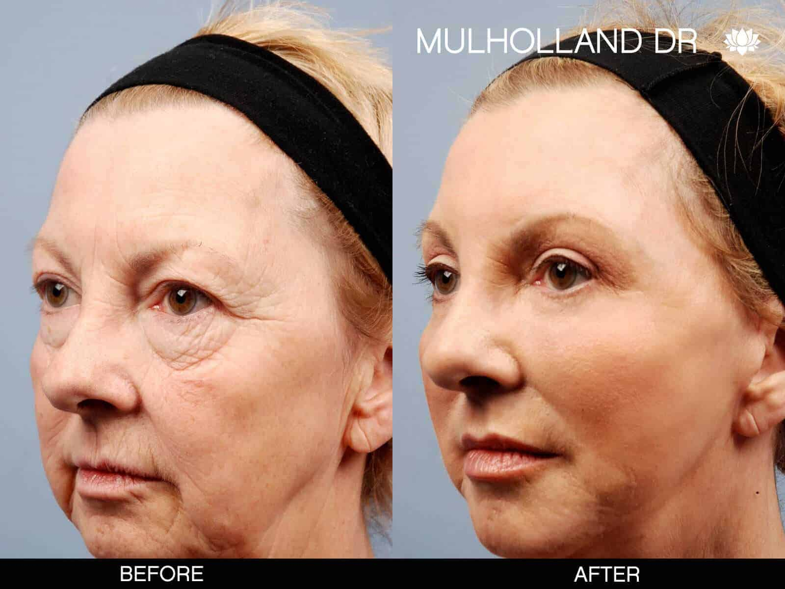 Brow Lift - Before and After Gallery - Patient Photo 12