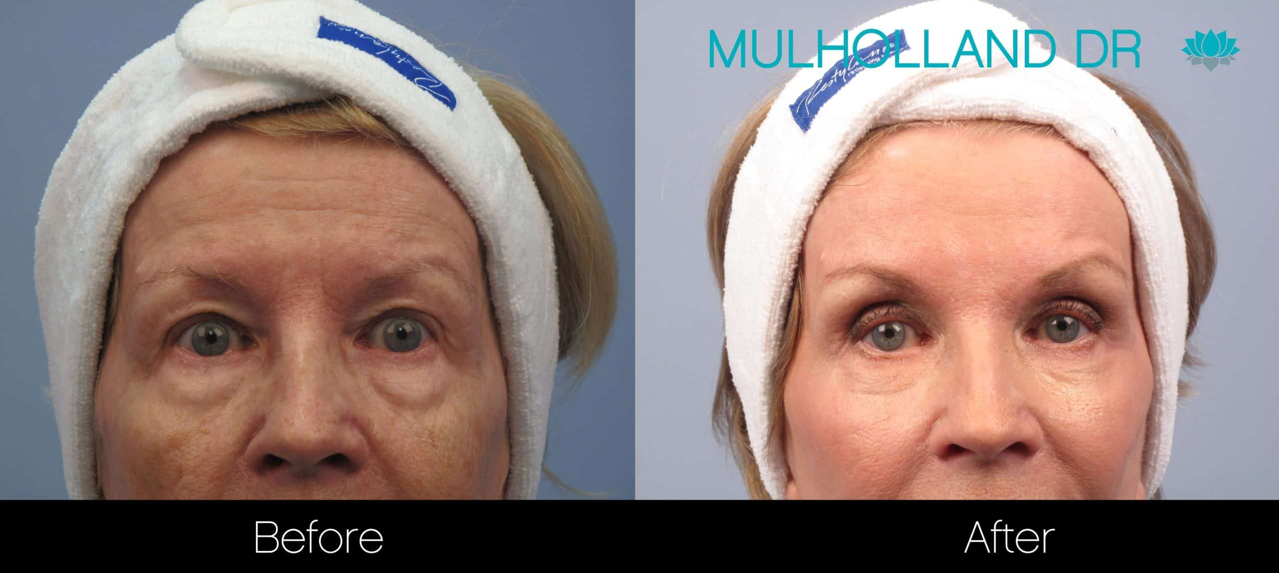 Brow Lift - Before and After Gallery - Patient Photo 29