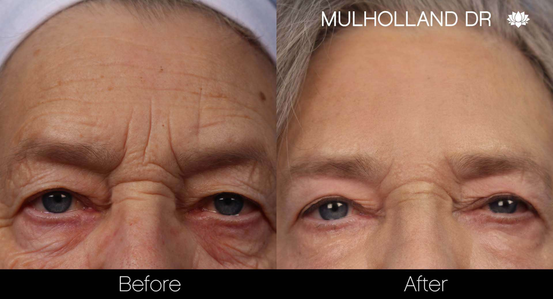Brow Lift - Before and After Gallery - Patient Photo 31