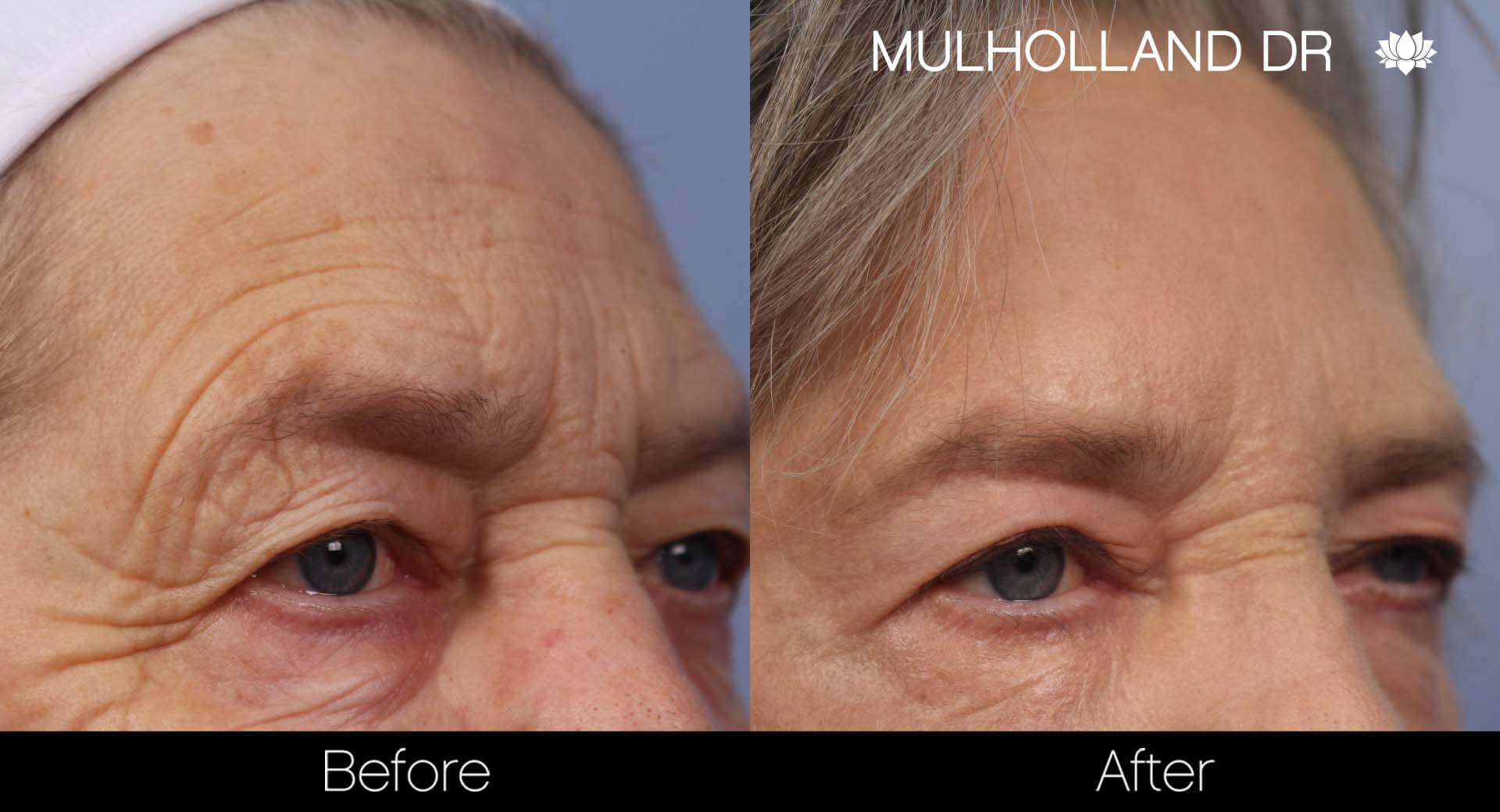 Brow Lift - Before and After Gallery - Patient Photo 32