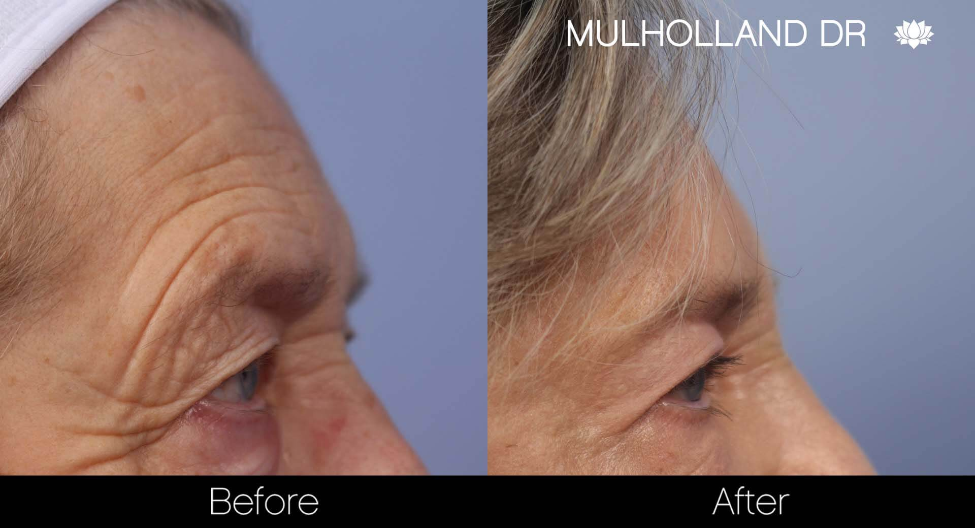 Brow Lift - Before and After Gallery - Patient Photo 33