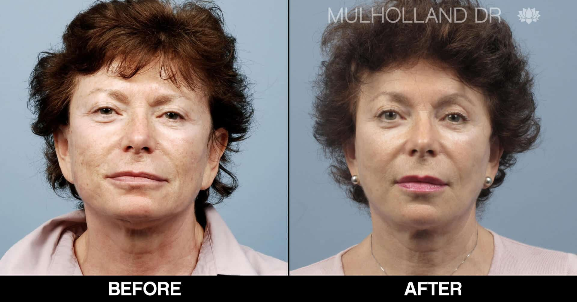 Brow Lift - Before and After Gallery - Patient Photo 40- Before and After Gallery - Patient Photo 41