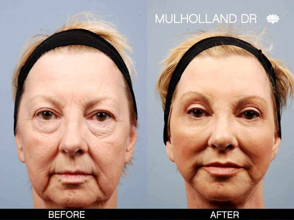 Brow Lift - Before and After Gallery - Patient Photo 8
