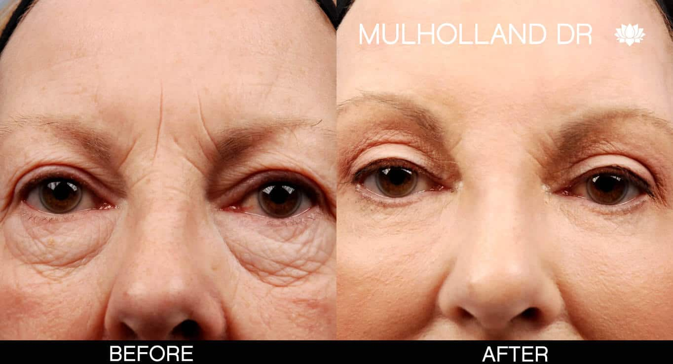 Brow Lift - Before and After Gallery - Patient Photo 9