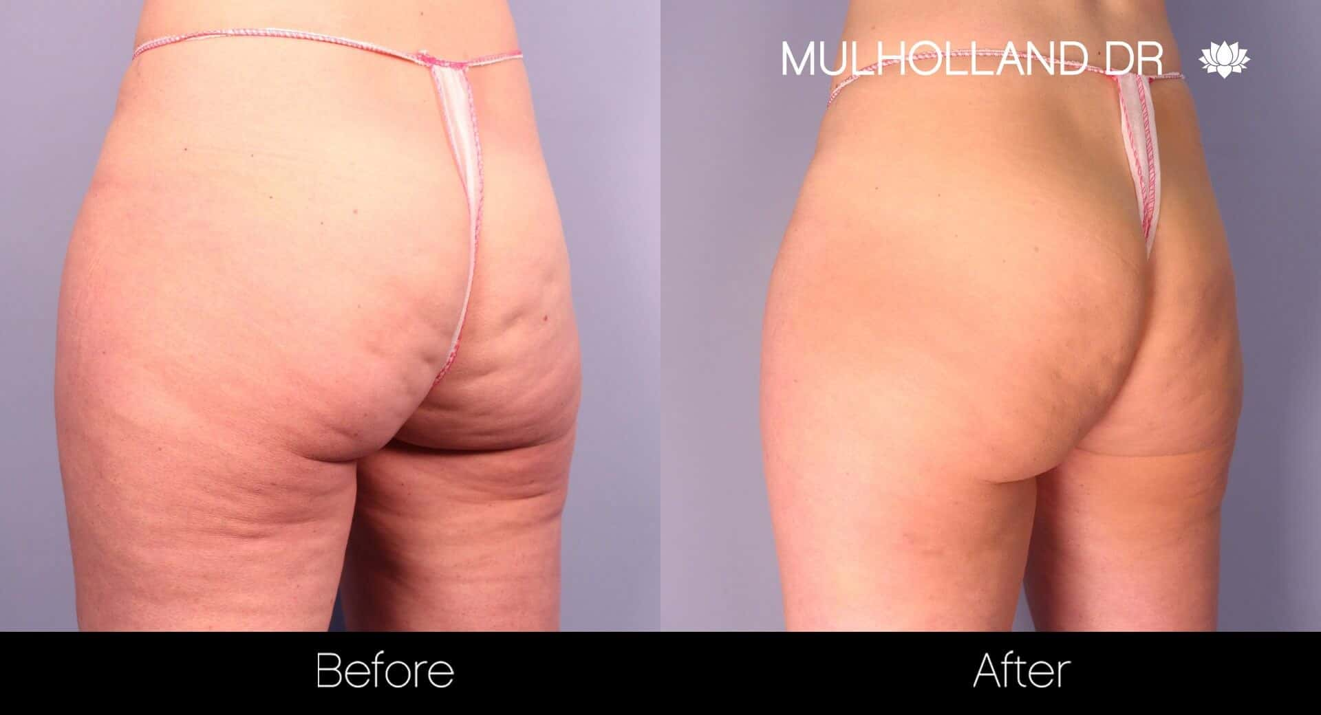 Cellfina -Before and After Gallery - Patient Photo 2