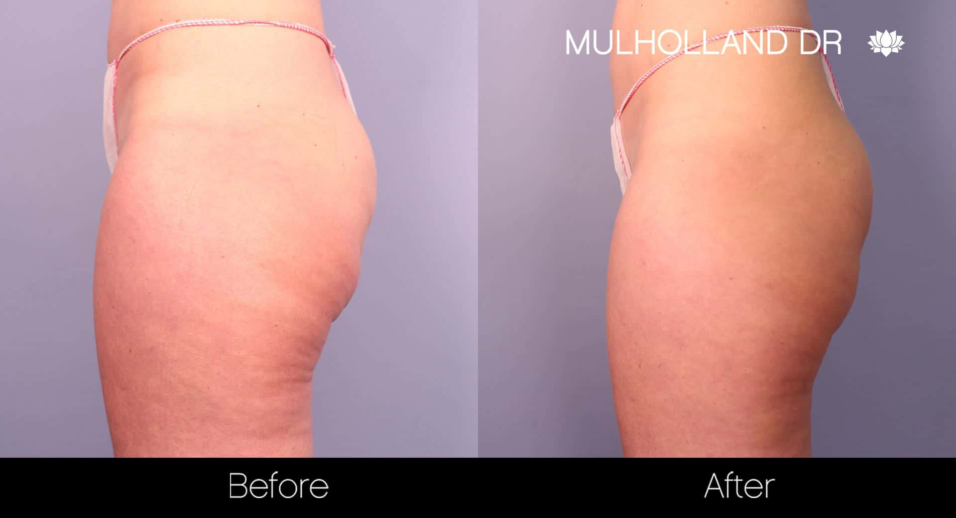 Cellfina -Before and After Gallery - Patient Photo 3