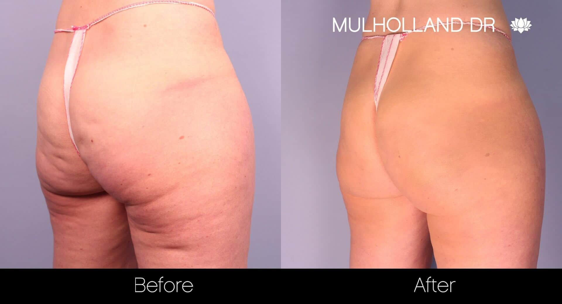 Cellfina -Before and After Gallery - Patient Photo 4