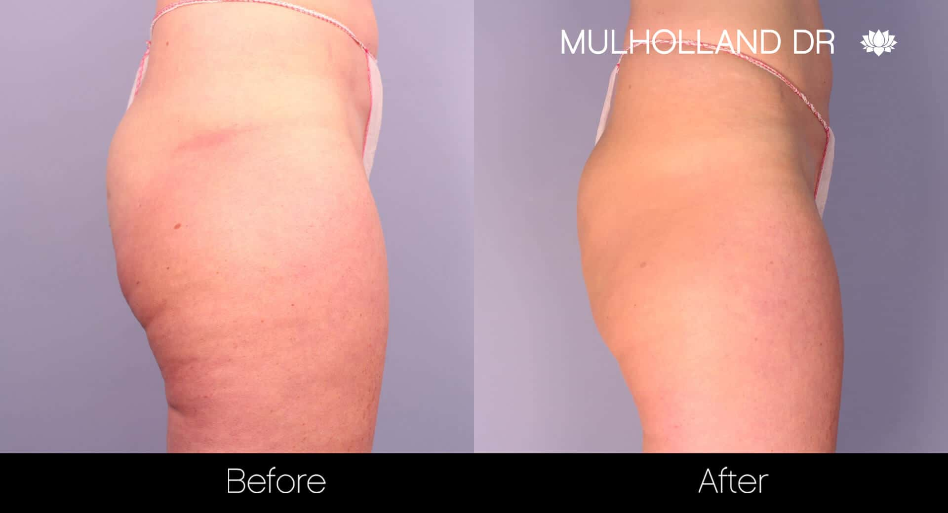 Cellfina -Before and After Gallery - Patient Photo 5