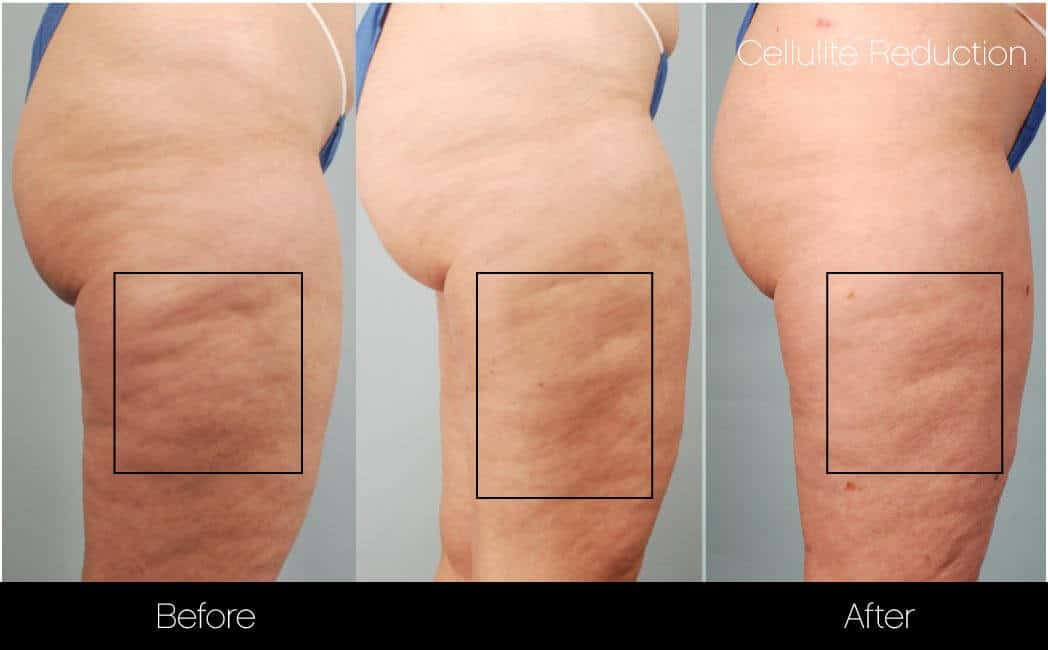 Cellutite -Before and After Gallery - Patient Photo 10