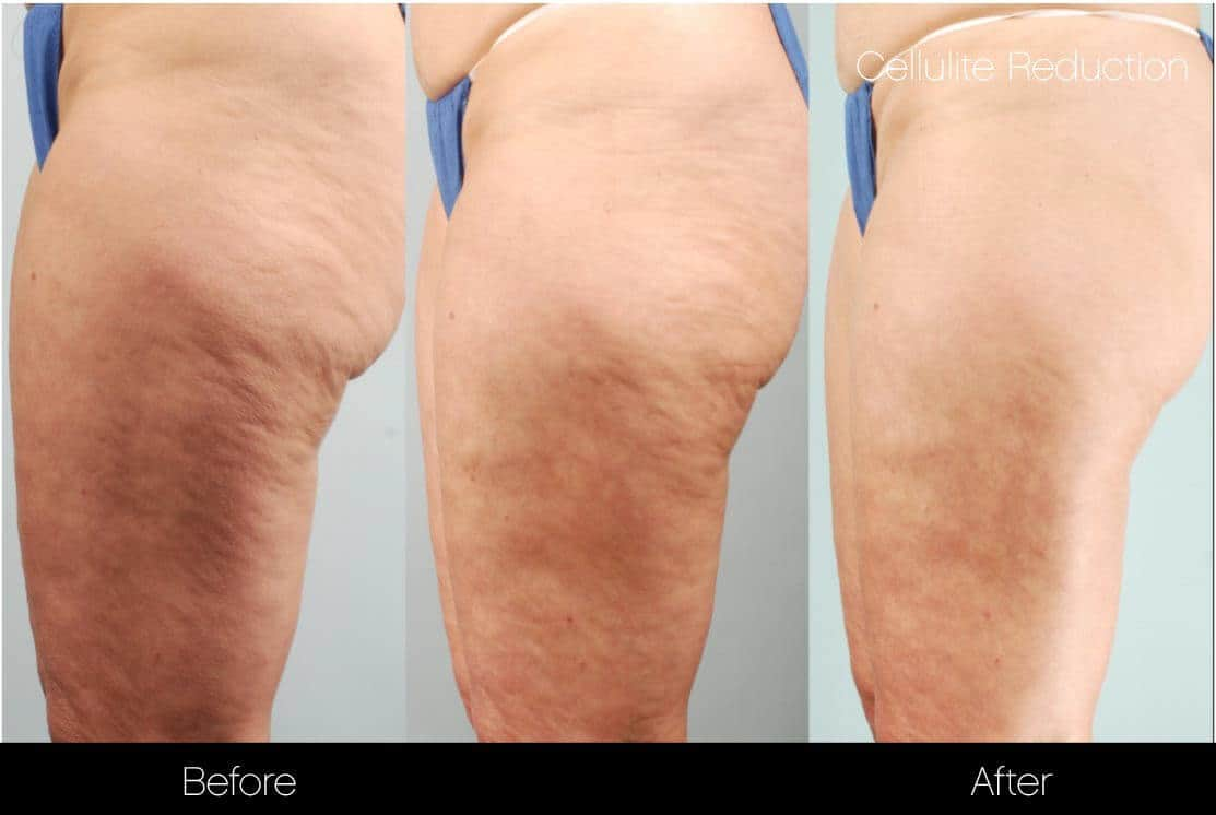 Cellutite -Before and After Gallery - Patient Photo 11