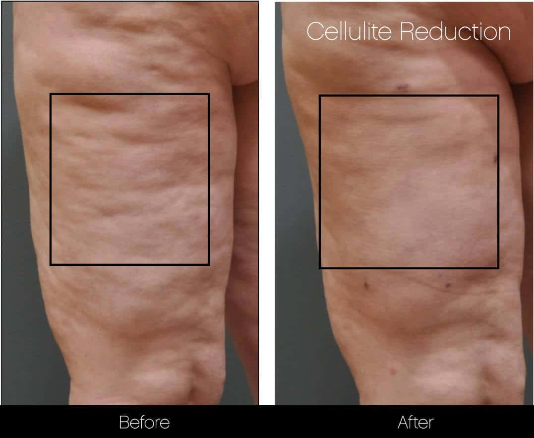 Cellutite -Before and After Gallery - Patient Photo 14