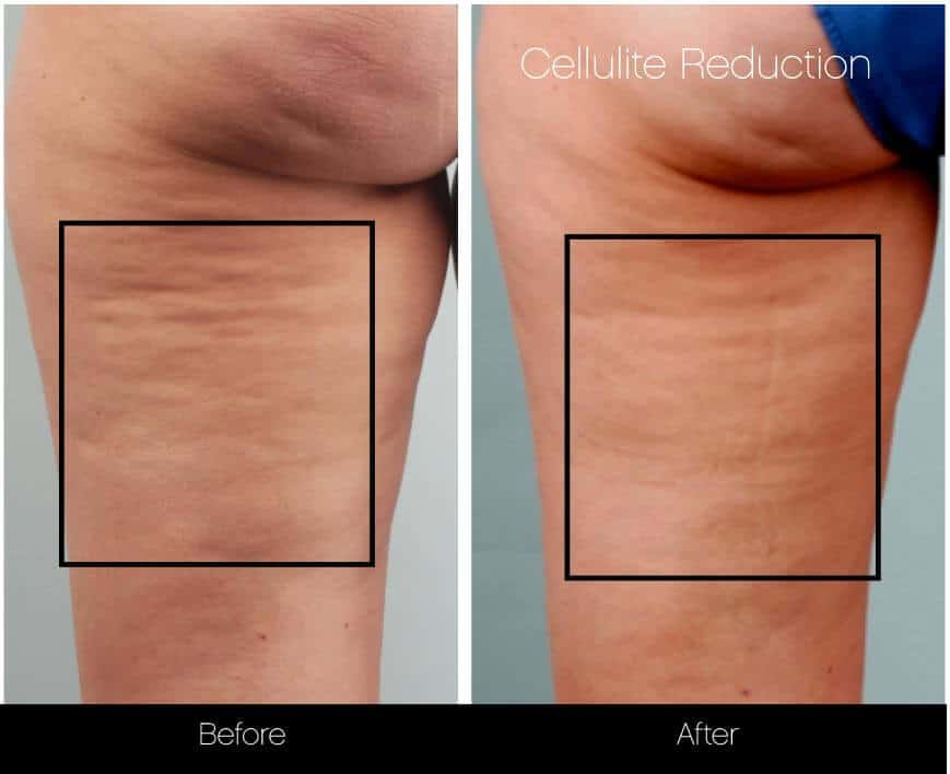 Cellutite -Before and After Gallery - Patient Photo 15
