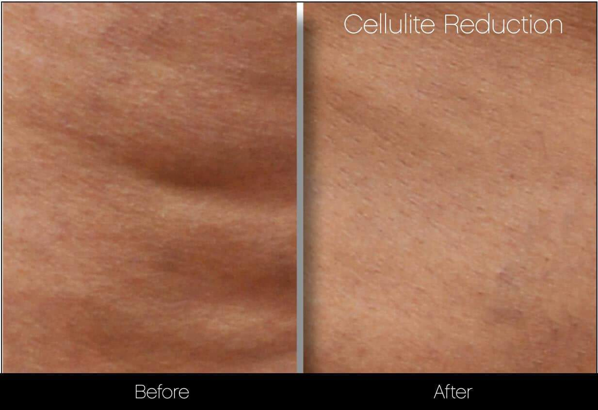 Cellutite -Before and After Gallery - Patient Photo 16